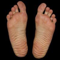 足底腱膜炎の症状