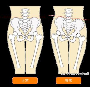 骨格のズレ