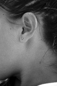 顎関節症へのマッサージ効果