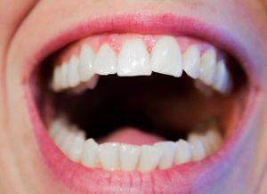 顎関節症に原因は噛み合わせ