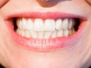 噛み合わせた歯